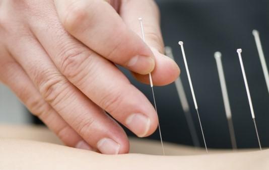Akupunktur Bisa Menurunkan Tekanan Darah Pasien Hipertensi
