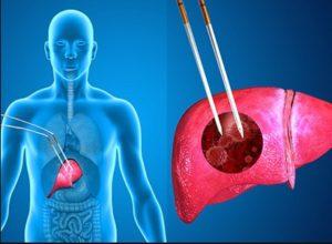 Terapi Kombinasi Untuk Kanker Hati