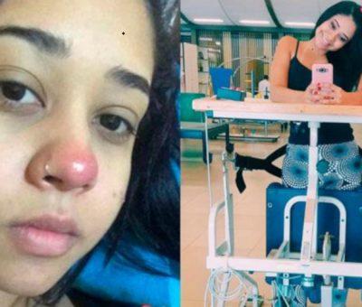 Layane Dias sebelum dan sesudah lumpuh