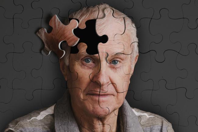 Tes darah pedeteksi alzheimer