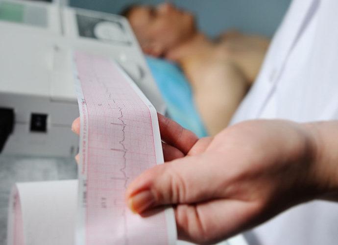 Pemeriksaan jantung dengan EKG