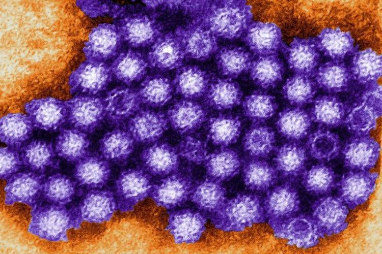 Virus Noro