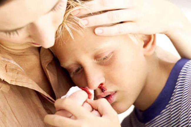penderita hemofilia